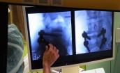 Nowatorskie zabiegi neurochirurgiczne w gorzowskim szpitalu