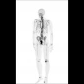 Fluorek sodu pomoże wykryć zmiany nowotworowe w kościach